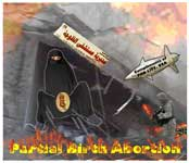 Partial Birth Abortion Cartoon